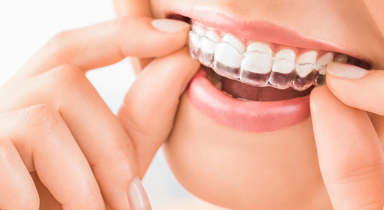#Unsichtbare Zahnspangen #für Ihr schönstes Lächeln